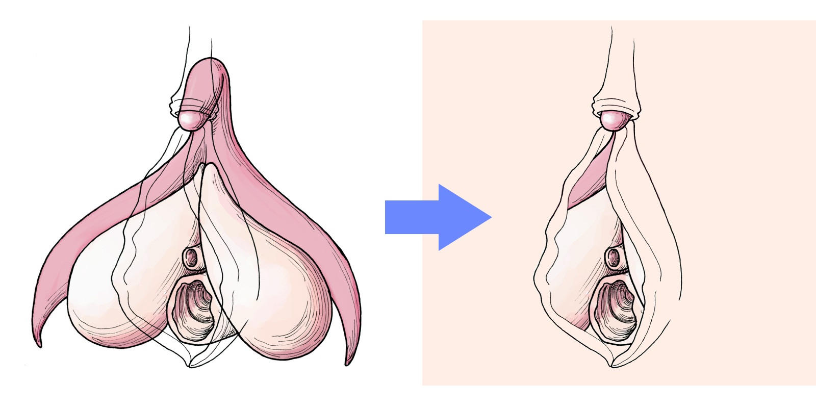 Most of the clitoris is hidden within the body